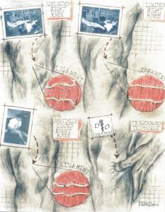 aus Orthopatische Medizin von Stephen Typaldos